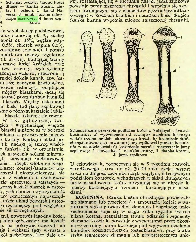 (...) złamanej kości; k. powstaje z wytworzonej przez okostną —*• ziarniny, która kostnieje pod wpływem działania komórek kościotwórczych (osteoblastów); przy braku styku segmentów złamania lub niedostatecznym unieSchemat budowy trzonu kości długiej — tkanka kostna zbita: 1 osteon, 2 kanał Haversa, 3 jamki kostne mieszczące osteocyty, 4 jama szpikowa...