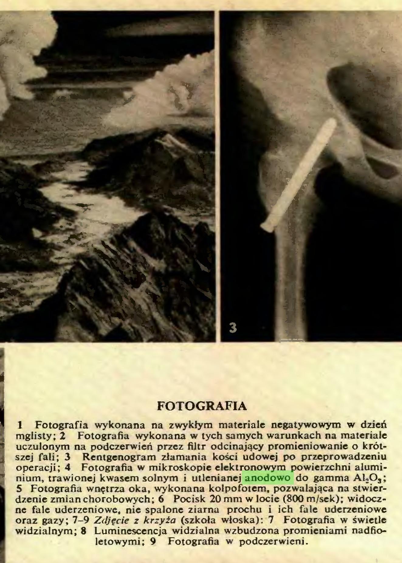 (...) FOTOGRAFIA 1 Fotografia wykonana na zwykłym materiale negatywowym w dzień mglisty; 2 Fotografia wykonana w tych samych warunkach na materiale uczulonym na podczerwień przez filtr odcinający promieniowanie o krótszej fali; 3 Rentgenogram złamania kości udowej po przeprowadzeniu operacji; 4 Fotografia w mikroskopie elektronowym powierzchni aluminium, trawionej kwasem solnym i utlenianej anodowo do gamma Al-O,; 5 Fotografia wnętrza oka, wykonana kolpofotem, pozwalająca na stwierdzenie zmian chorobowych; 6 Pocisk 20 mm w locie (800 m/sek); widoczne fale uderzeniowe, nie spalone ziarna prochu i ich fale uderzeniowe oraz gazy; 7-9 Zdjęcie z krzyża (szkoła włoska): 7 Fotografia w świetle widzialnym; 8 Luminescencja widzialna wzbudzona promieniami nadfioletowymi; 9 Fotografia w podczerwieni. FOTOGRAFIA...